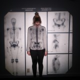 girl with x-ray projected on her chest